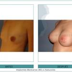 113_Implantes-Mamarios-385-cc-Naturales