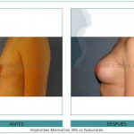 114_Implantes-Mamarios-385-cc-Naturales