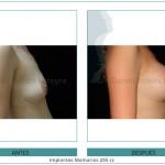 124_Implantes-Mamarios-285-cc