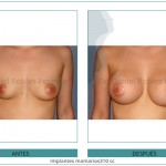 128_Implantes-mamarios310-cc