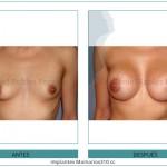 138_Implantes-Mamarios310-cc