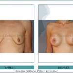 164_Implantes-mamarios-310-cc-+-periareolar