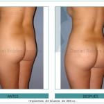 187_-Implantes--de-Gluteo--de-300-cc