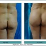 194_-Implantes--de-Gluteo--de-350-cc
