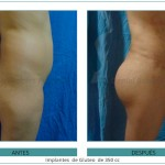198_-Implantes--de-Gluteo--de-350-cc