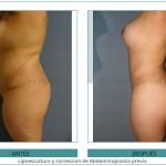 39_Lipoescultura-y-correccion-de-Abdominoplastia-previa