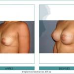 92_Implantes-Mamarios-375-cc