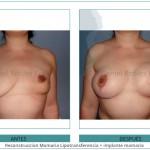 109_Reconstruccion-Mamaria-Lipotransferencia-+-implante-mamario