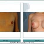 112_Implantes-Mamarios-385-cc-Naturales