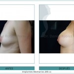 125_Implantes-Mamarios-285-cc