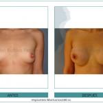 133_Implantes-Mamarios340-cc