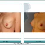 134_Implantes-Mamarios340-cc