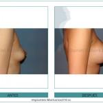 142_Implantes-Mamarios310-cc