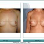 143_Implantes-Mamarios-420-cc