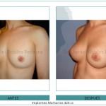 144_Implantes-Mamarios-420-cc