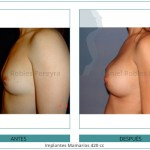 145_Implantes-Mamarios-420-cc