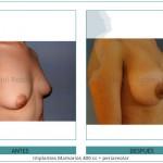 171_Implantes-Mamarios-400-cc-+-periareolar