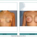 91_Implantes-Mamarios-375-cc