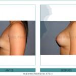 93_Implantes-Mamarios-375-cc