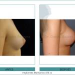 99_Implantes-Mamarios-375-cc